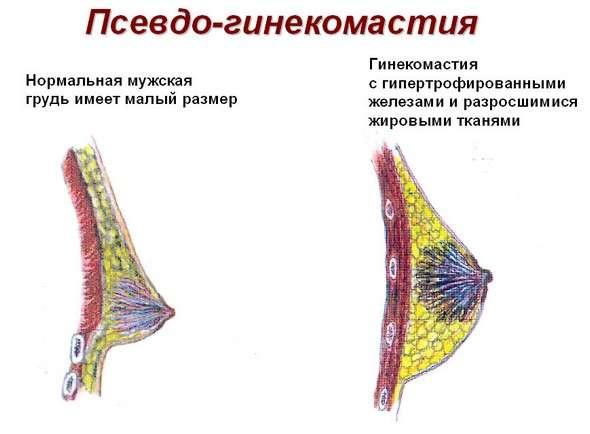 Гінекомастія: симптоми і лікування