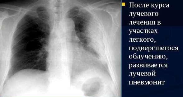 Пневмоніт: симптоми і лікування