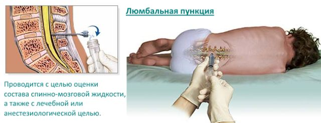 Геміплегія: симптоми і лікування