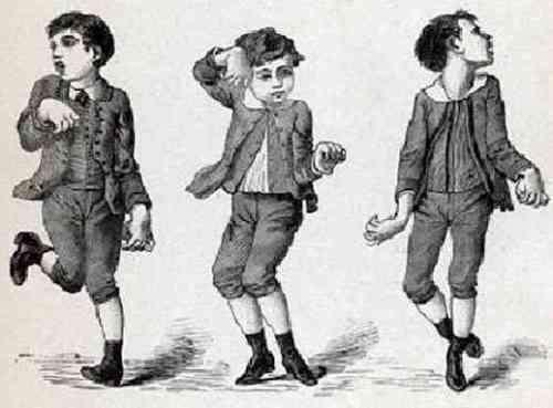 Мала хорея (хорея Сиденгама): симптоми і лікування