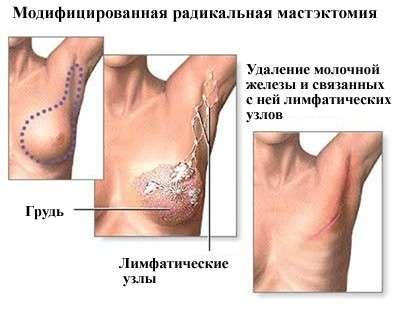Вузлова мастопатія: симптоми і лікування