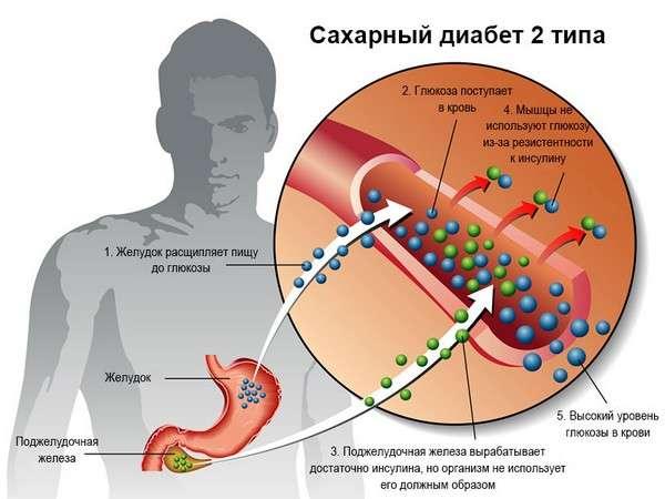 Цукровий діабет 2 типу: симптоми і лікування
