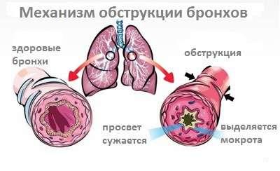 Обструктивний бронхіт: симптоми і лікування