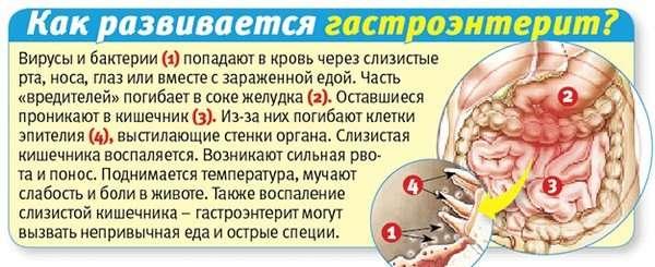 Гострий гастроентерит: симптоми і лікування