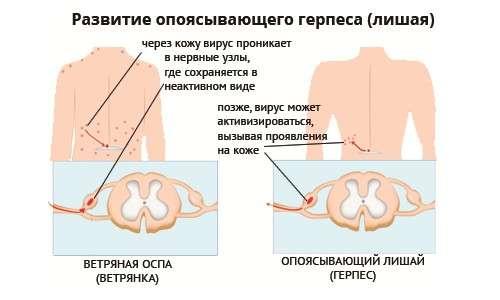 Оперізувальний герпес: симптоми і лікування