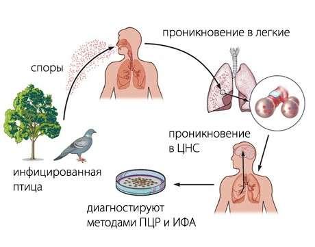 Орнітоз (пситтакоз): симптоми і лікування