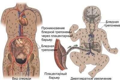 Вроджений сифіліс: симптоми і лікування
