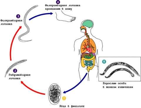 Стронгілоїдоз: симптоми і лікування