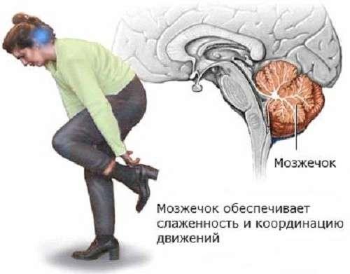 Мозочкова атаксія: симптоми і лікування