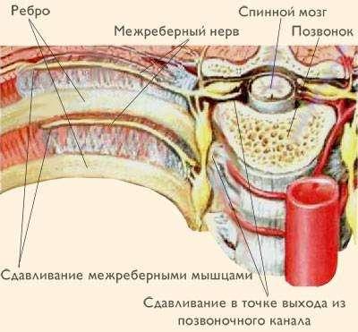 Невралгія грудного відділу хребта: симптоми і лікування