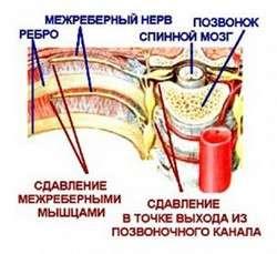 Невралгія: симптоми і лікування