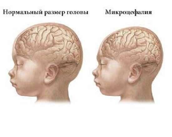 Олігофренія: симптоми і лікування
