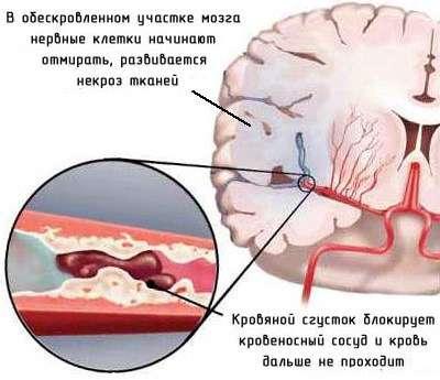 Мікроінсульт: симптоми і лікування