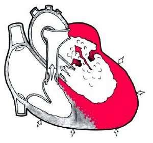 Набутий порок серця: симптоми і лікування
