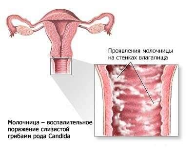 Молочниця при вагітності: симптоми і лікування