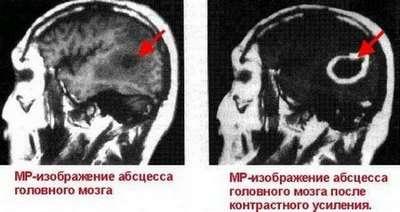 Абсцес головного мозку: симптоми і лікування
