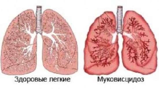 Муковісцидоз: симптоми і лікування