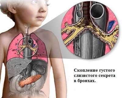 Синьогнійна паличка: симптоми і лікування