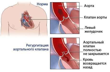 Аортальна недостатність: симптоми і лікування