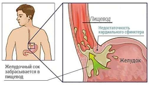 Недостатність кардії шлунка: симптоми і лікування