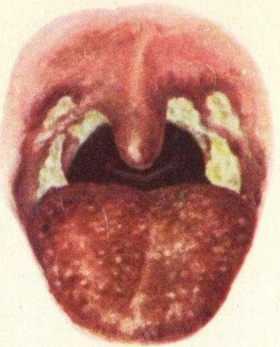 Агранулоцитоз: симптоми і лікування