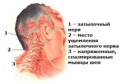 Невралгія потиличного нерва: симптоми і лікування