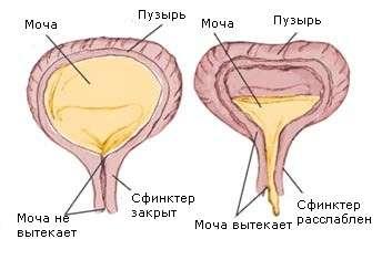 Нейрогенний сечовий міхур: симптоми і лікування