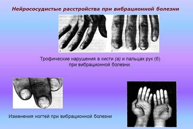 Вібраційна хвороба: симптоми і лікування