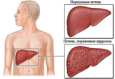 Біліарний цироз печінки: симптоми і лікування