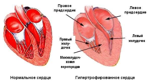 Серцево-легенева недостатність: симптоми і лікування