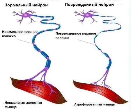 Бічний аміотрофічний склероз: симптоми і лікування