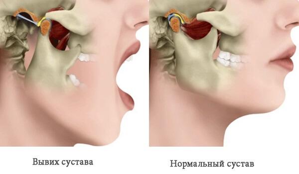 Вивих нижньої щелепи: симптоми і лікування