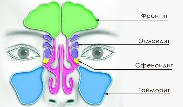 Етмоїдит: симптоми і лікування