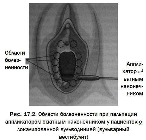 Вестибулит: симптоми і лікування
