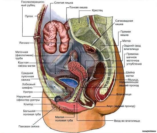 Ендометріоз: симптоми і лікування