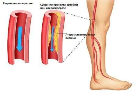 Облітеруючий атеросклероз: симптоми і лікування