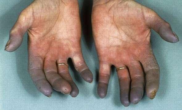 Облітеруючий тромбангіїт (хвороба Бюргера): симптоми і лікування