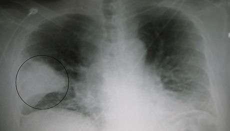 Бактеріальна пневмонія: симптоми і лікування