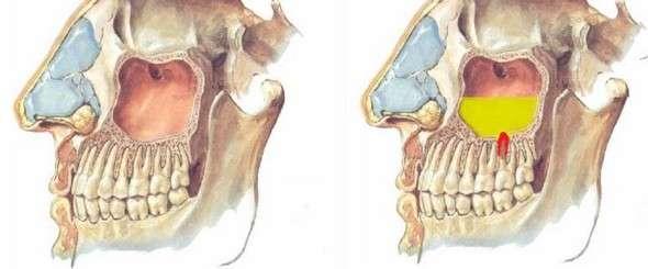Одонтогенний гайморит: симптоми і лікування