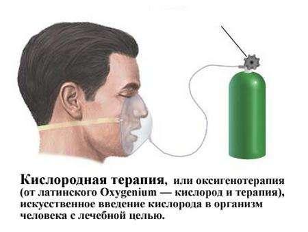 Сегментарна пневмонія: симптоми і лікування