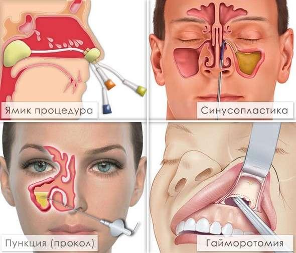 Верхньощелепної синусит: симптоми і лікування