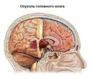 Пухлина головного мозку: симптоми і лікування