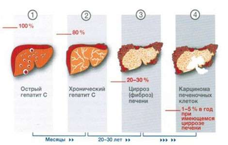 Вірусний гепатит: симптоми і лікування