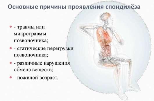 Спондильоз поперекового відділу: симптоми і лікування