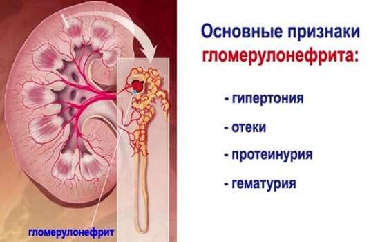 Гломерулонефрит у дітей: симптоми і лікування