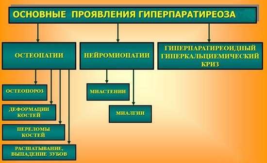 Гіперпаратиреоз: симптоми і лікування
