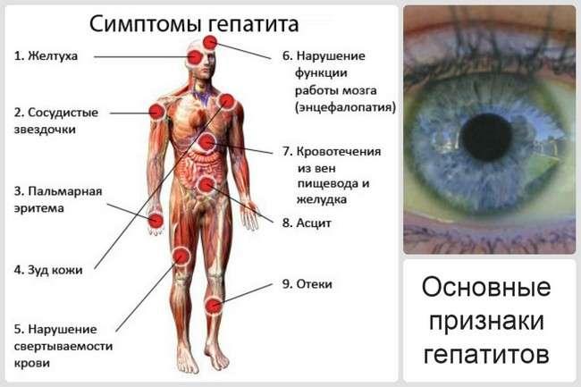 Гепатит Е: симптоми і лікування