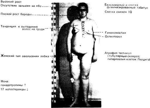 Синдром Клайнфельтера: симптоми і лікування