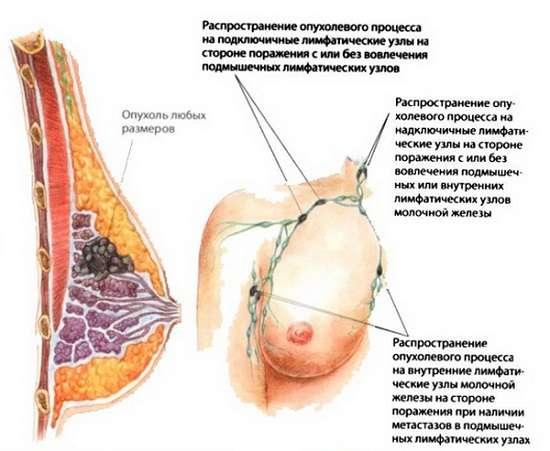 Рак молочної залози: симптоми і лікування