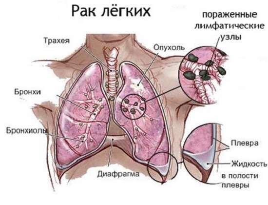 Рак легенів: симптоми і лікування